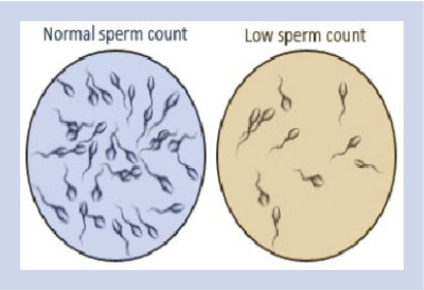 sperm Sperm counts wash after